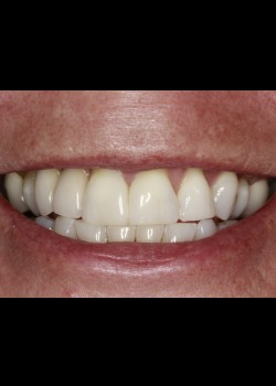 Black Triangle Closure with Dental Implants